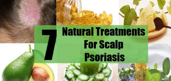 Homemade Scalp Treatment for Psoriasis