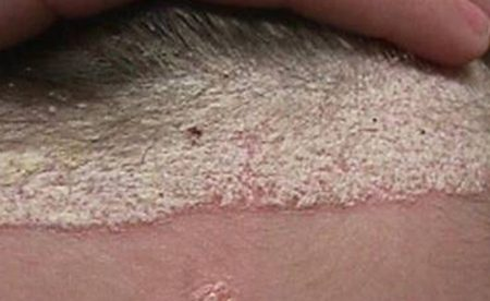 Plaque Psoriasis on Scalp