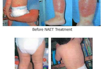 Treatment for Severe Eczema