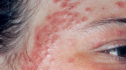 Herpetic Eczema Care and Treatment