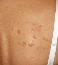 Hereditary Skin Bumps