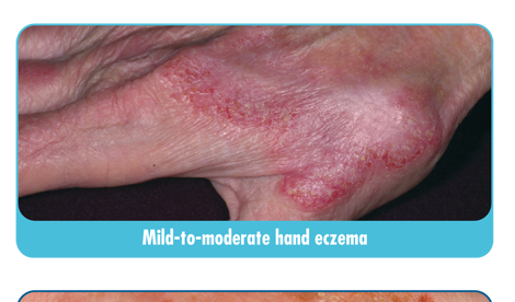 Signs and Symptoms of Eczema