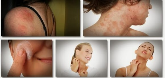 Best Homeopathic Remedy for Eczema