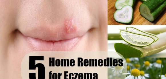 Eczema Home Remedies for Adults