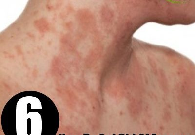 How to Get of Eczema