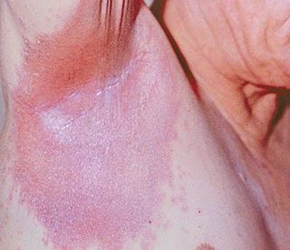 Is Inverse Psoriasis Contagious