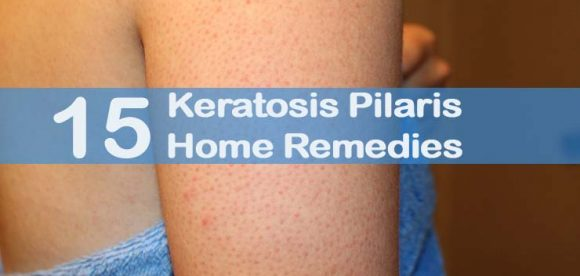 How To Get Rid Of Keratosis Pilaris With Coconut Oil