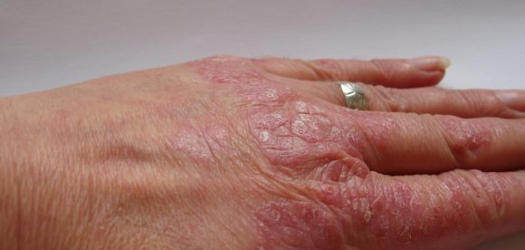 Psoriasis Skin Pictures