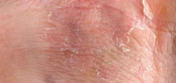 Can Eczema Spread by Scratching