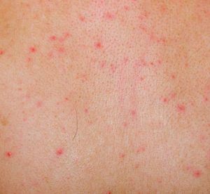 Common Skin Allergies