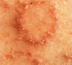 Pictures of Mild Eczema Patches