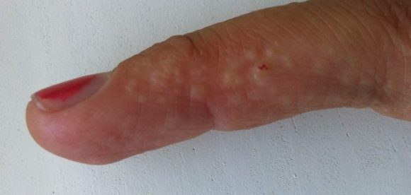 Dyshidrotic Eczema Natural Treatment
