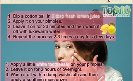 Easy Home Remedies for Pimples