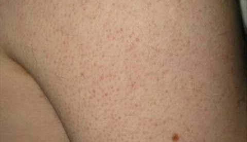 How Can I Get Rid Of Keratosis Pilaris