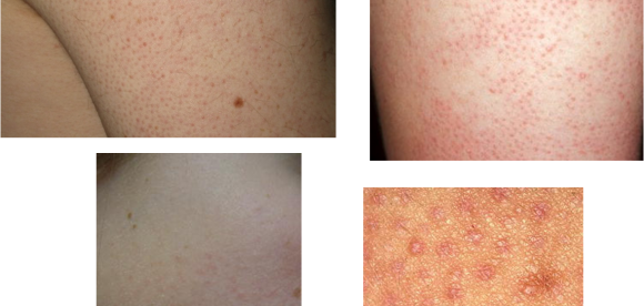 How To Get Rid Of Keratosis Pilaris On Arms