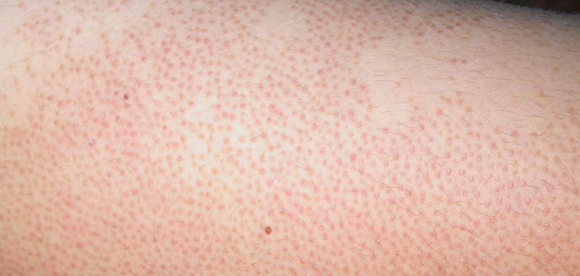 Little Bumps On Upper Arms