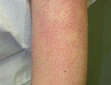Polaris Skin Disease