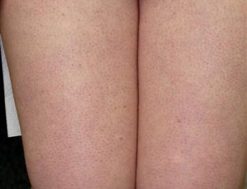 Treatment for Keratosis Pilaris 2014