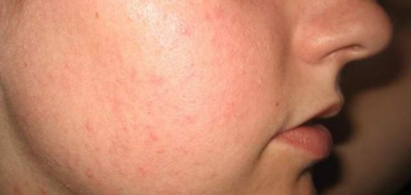 Small Acne Bumps On Face