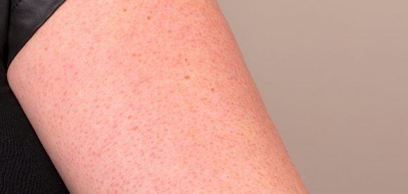 Spots On Upper Arms