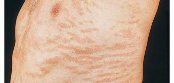 What is Para Psoriasis