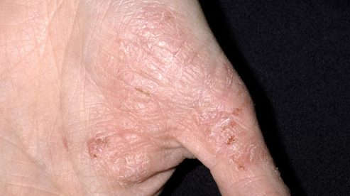 Does Eczema Cause Bumps
