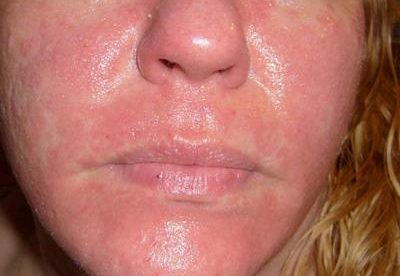 Rash On Face