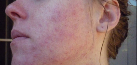 Pictures of Irritated Skin