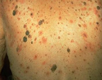 Growth on Face Skin Keratosis