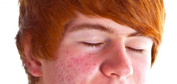 Best Teen Acne Product for Boys