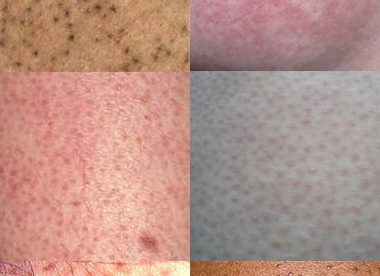 What is KP Skin Condition